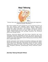 Bayi Tabung.doc